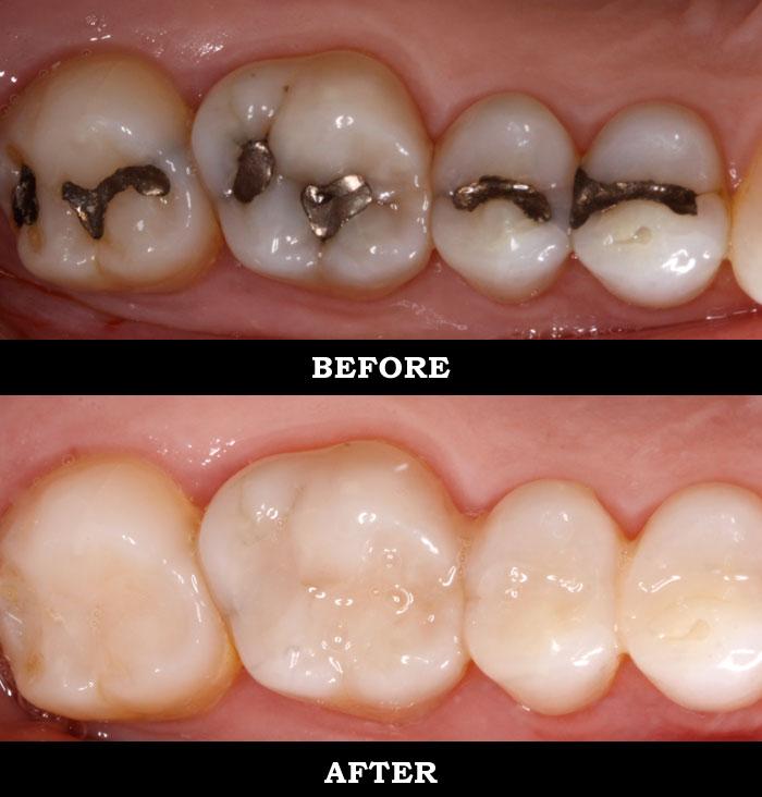 Rowena antonio garcia dmdsc restorative dentistry implants restorative dentistry services fillings solutioingenieria Gallery